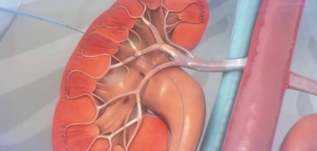 افضل طبيب لعلاج امراض الذكورة في الاردن يتكلم عن قسطرة الحالب