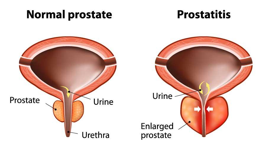 افضل طبيب لعلاج امراض الذكورة في الاردن يتكلم عن أمراض البروستاتا