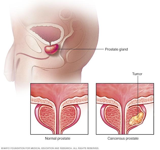 افضل طبيب لعلاج امراض الذكورة في الاردن يتكلم عن سرطان البروستات
