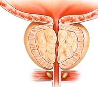 افضل طبيب لعلاج امراض الذكورة في الاردن يتكلم عن مشاكل البروستاتا