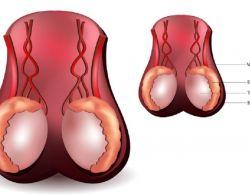 افضل طبيب لعلاج امراض الذكورة في الاردن يتحدث عن ضمور الخصية