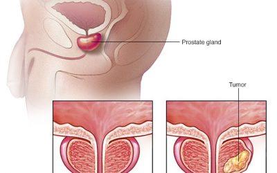 افضل طبيب لعلاج امراض الذكورة في الاردن وأهم أمراض الذكورة حلها أصبح سهل