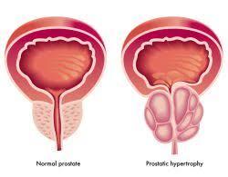افضل طبيب لعلاج امراض الذكورة في الاردن وعلاج تليف البروستاتا