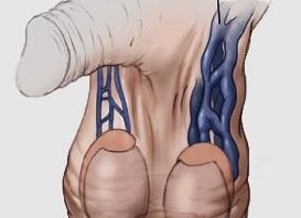 عملية ربط دوالي الخصية بالميكروسكوب الجراحي